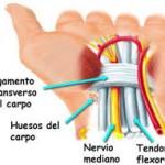 Neurodinamica en el tratamiento del síndrome del túnel carpiano