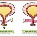 Fisioterapia en mujeres con incontinencia urinaria