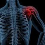 Abordaje del hombro congelado: el concepto mulligan.