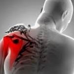 Dolor cervicobraquial ¿Qué es?