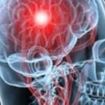 El papel de la fisioterapia en el ICTUS