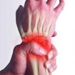 Fractura de escafoides: tratamiento de fisioterapia