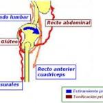 Rotura de Músculos Isquiosurales