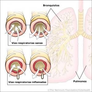 Bronquiolitis Aguda Infantil