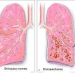 Fisioterapia respiratoria en las bronquiectasias: objetivos y beneficios.