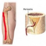 ¿Qué es una periostitis tibial?