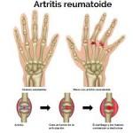 Artritis reumatoide y tratamiento de fisioterapia