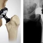Prótesis de cadera: recomendaciones y tratamiento de fisioterapia